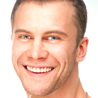 tractaments_facial_bioplastia_profunda_hombre