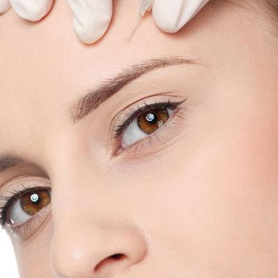 tractaments_facial_mesoterapia
